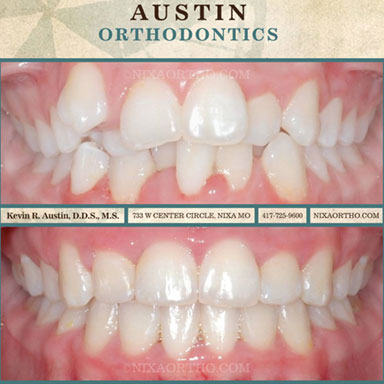Dentalcrowding-with4bicuspidextrations-resized